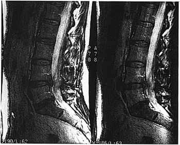 Phase Mis Mapping Mri