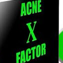 The Acne X Factor System