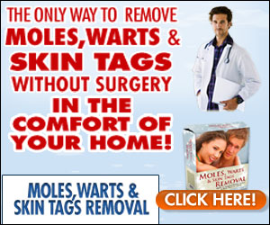 Moles, Warts and Skin Tags Removal Ebook By Dr. Davidson