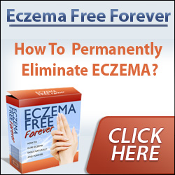 Eczema Free Forever Ebook by Rachel Anderson