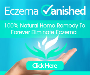 Eczema Holistic Treatments