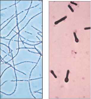 Figure Clostridium Tetani