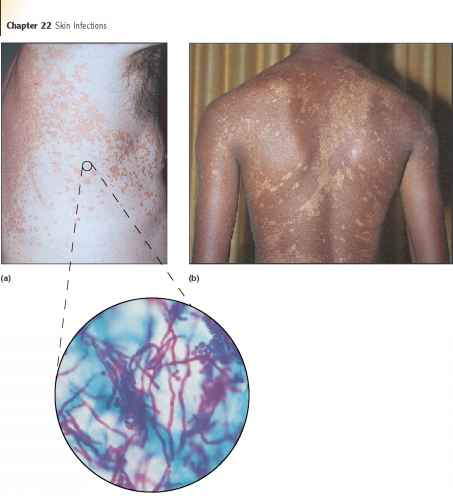 Microscopic Arachnid Skin Causes Acne