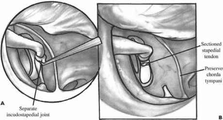 Tympanomeatal Flap