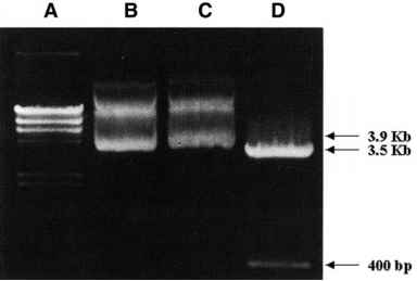 Digested Plasmid Agarose Gel