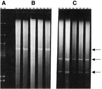 Electrophoresed Genomic Dna Bands
