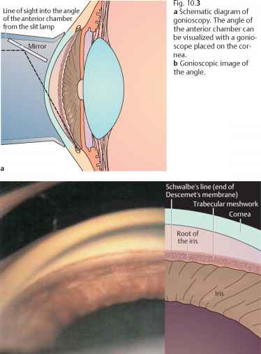 Closed Angle Glaucoma Gonioscopy