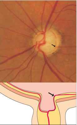 Optic Nerve Ratio Measurement