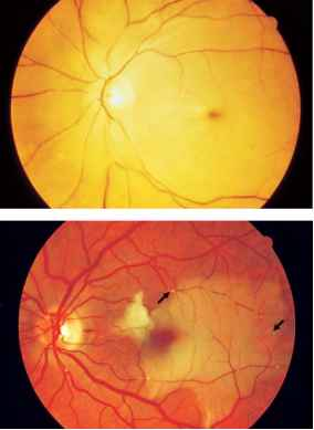 Retinal Image Meaning