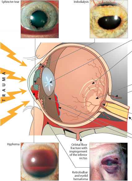 Blunt Contusion Eye Injury