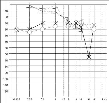 Otosclerose Audiogram