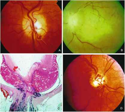 Optic Disc Haemorrhage