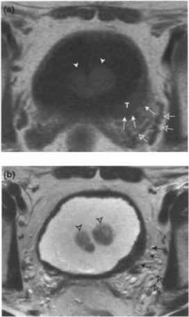 Mri Perivesical Fat Infiltrations