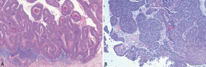 Nasal Squamous Cell Carcinoma