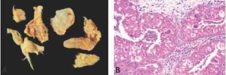 papiloma nasal oncocitico
