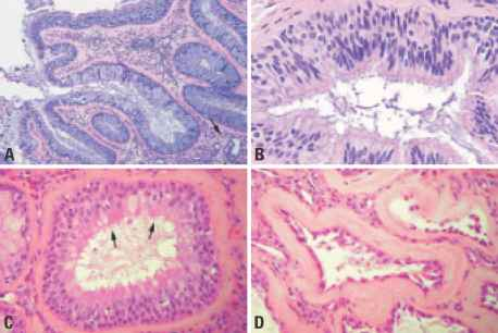 Respiratory Epithelial
