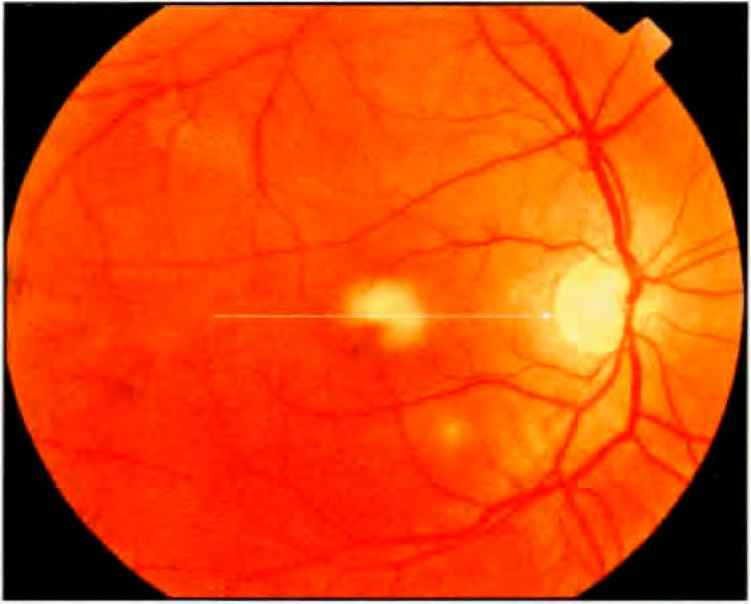 Yellow Lesion Retina