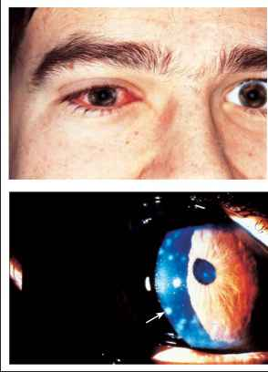 Viral Conjunctivitis - Visual Acuity - ALPF Medical Research