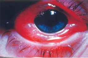 Conjunctival Chemosis